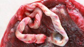 placenta_istock_000007419276small-352x198.jpg