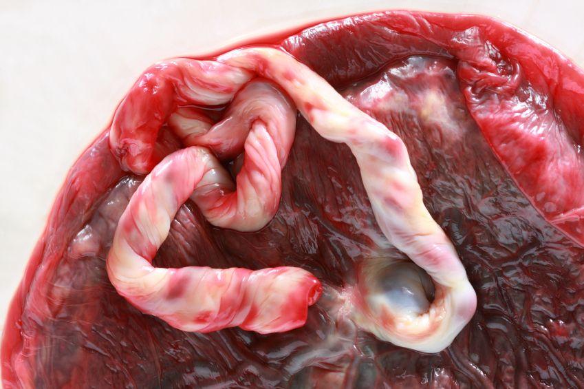 placenta_istock_000007419276small.jpg