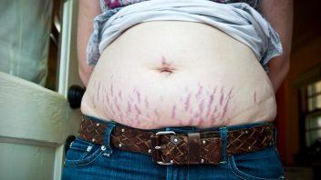 brucho-strie-tehotenstvo-pokozka-starostlivosti-istock_000020139527-352x198.jpg