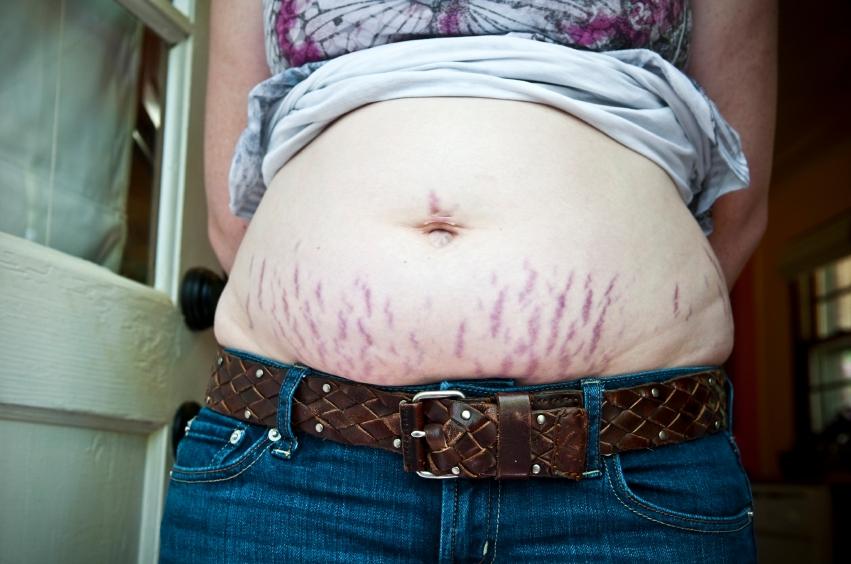 brucho-strie-tehotenstvo-pokozka-starostlivosti-istock_000020139527.jpg