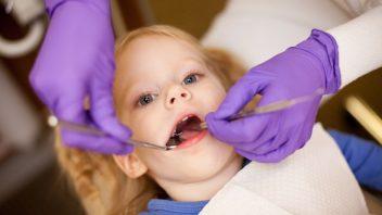 dieta-zubar-zubne-prohliika-hygiena-istock_000015182165-352x198.jpg