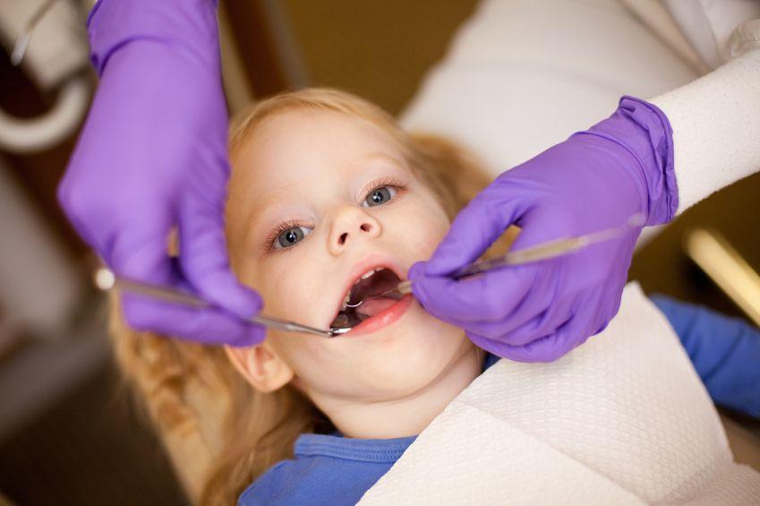 dieta-zubar-zubne-prohliika-hygiena-istock_000015182165.jpg